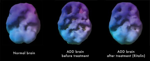 A brain scan of 3 different brains 1st: Normal functioning, smooth. 2nd: ADD brain before treatment, divots/holes in the brain, two most prominent in the frontal cortex. 3rd: ADD brain after treatment (Ritalin). Looks smoother, less exaggerated divots.